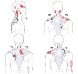 musculo trapecio, cervicalgia